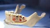 удалять зубной нерв
