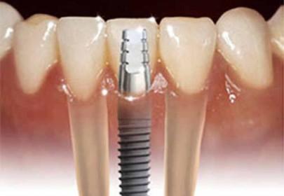 Пример протезирования зубов