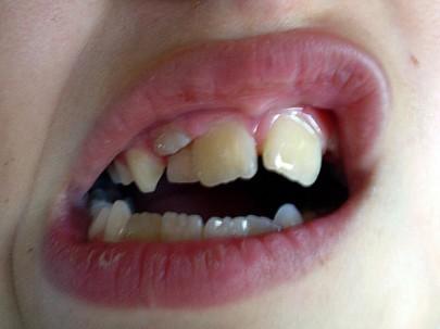 Два ряда зубов