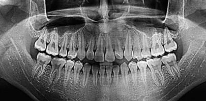 Цифровая ортопантомограмма
