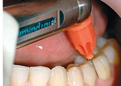 Обезболивающие при лечении зубов для беременных 45