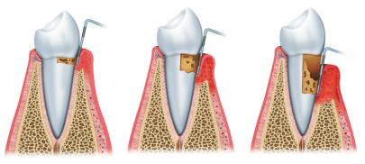 Периодонтит – это одна из стадий заболевания, которое впоследствии переходит в пульпит, где воспаление распространяется по всей поверхности зуба.