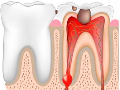 Периостит является проявлением различных стоматологических болезней и осложнение.