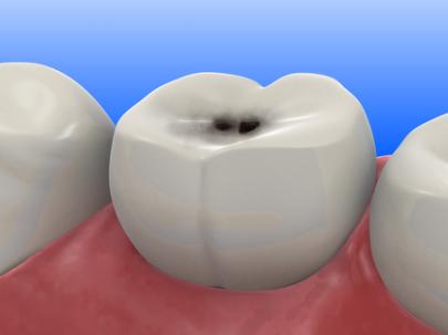 При кариесе разрушается эмаль зубов и появляется боль