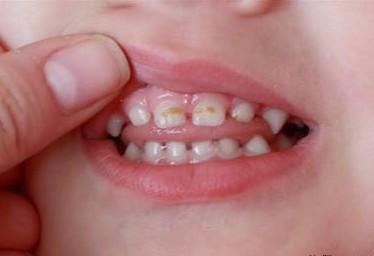 Кариес возникает не только на постоянных зубах, но и на молочных