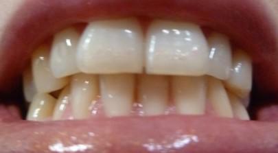 Дистальный прикус это нарушение, при котором верхняя челюсть выдвигается вперед по отношению к нижней челюсти.