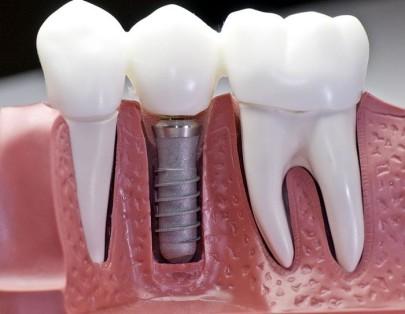 Импланты практически не отличаются от здоровых зубов.