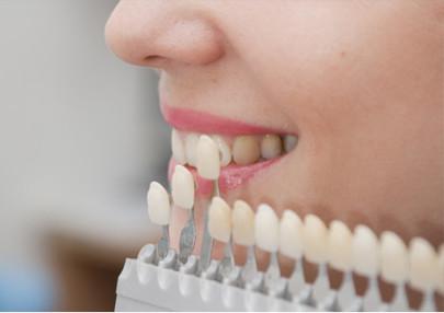 Пациентам следует знать, что в отличие от капы, виниры предполагают предварительную обточку зубов.