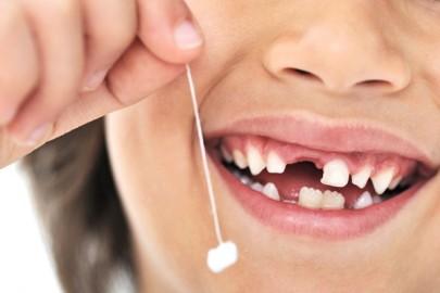 Выпадение зубов происходит у девочек раньше, чем у мальчиков.