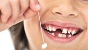 в каком порядке выпадают зубы у детей