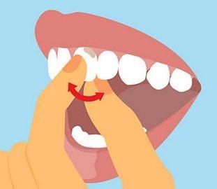 шатающиеся зубы