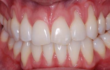 почему оголяются шейки зубов