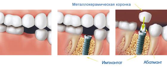 как ставят имплант
