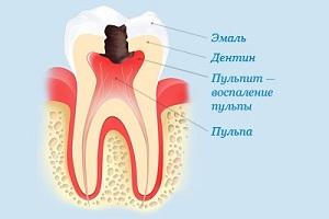 расположение нерва в зубе