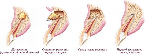 операция резекции корня