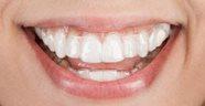 каппы для выравнивания зубов