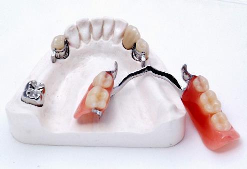 фиксация протеза