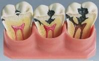 ампутация пульпы зуба