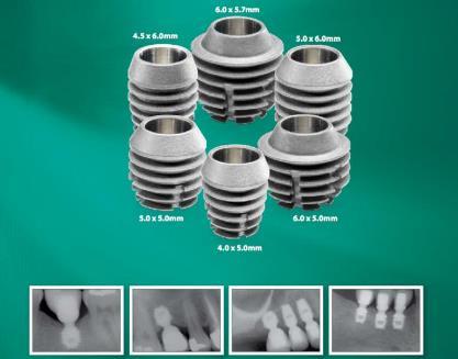 имплантация зубов Байкон