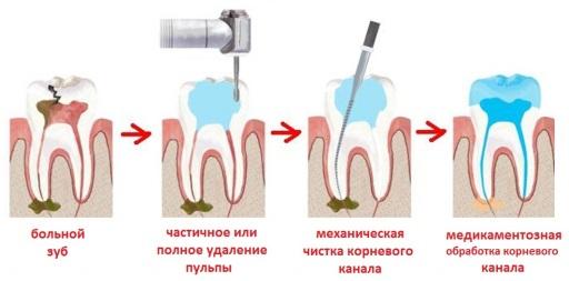 боль в мертвом зубе