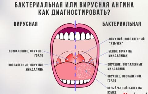 особенности бактериального тонзиллита