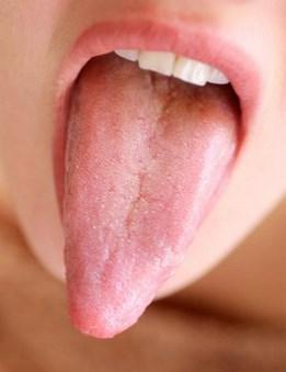 фото здорового языка человека