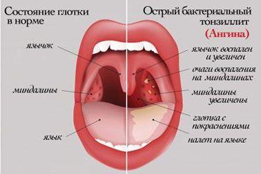 Белые пятна в горле и миндалинах у