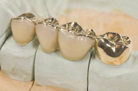 виды вкладок на зуб