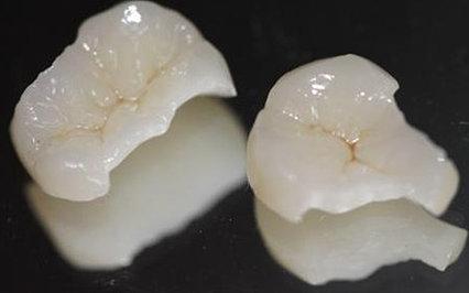 как ставят вкладку в зуб
