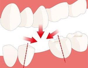 смещение зубов после удаления