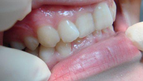 аномалия зубных рядов