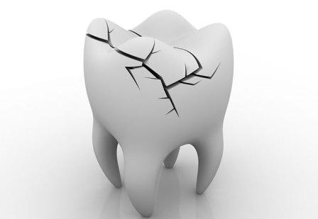 раскололся зуб