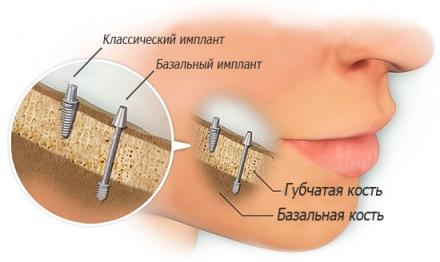 базальное протезирование