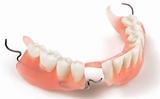 зубных протезов на крючках
