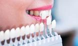 виниров на зубы