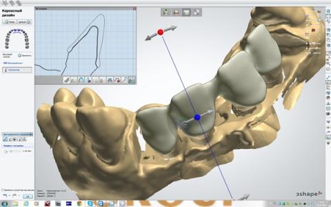 CAD/CAM модель