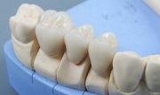 керамические зубные коронки