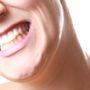 Признаки и опасность патологической стираемости зубов
